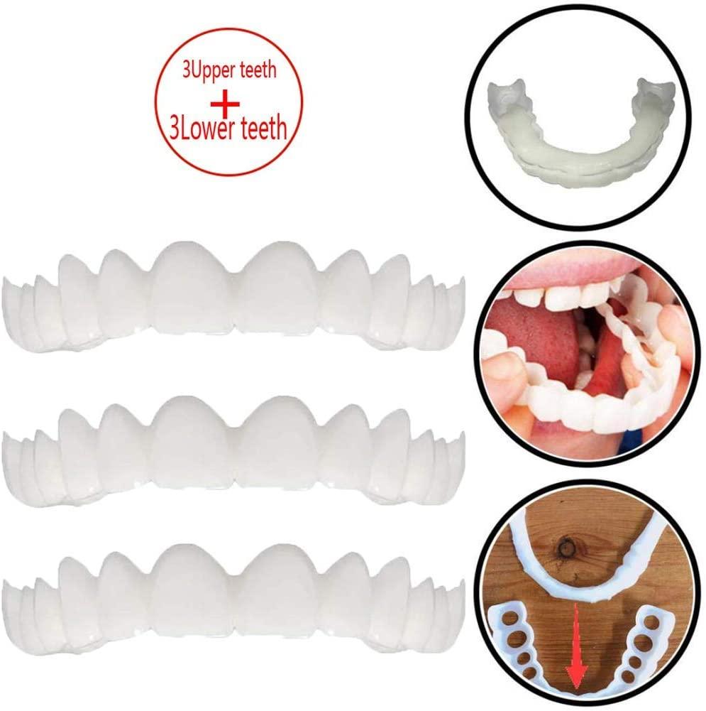 ZNXY 3 Pair Temporary Teeth Whitening, Simulation Braces Upper Braces + Lower Braces Whitening Teeth Snap On Instant Perfect Veneers,3upperteeth+3lowerteeth