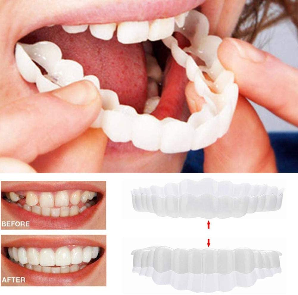 ZNXY 2PCS Upper and Lower Teeth Simulation Braces,Instant Smile Comfort Fit Flex Cosmetic Teeth, Bright White Shade, Comfortable Upper Veneer