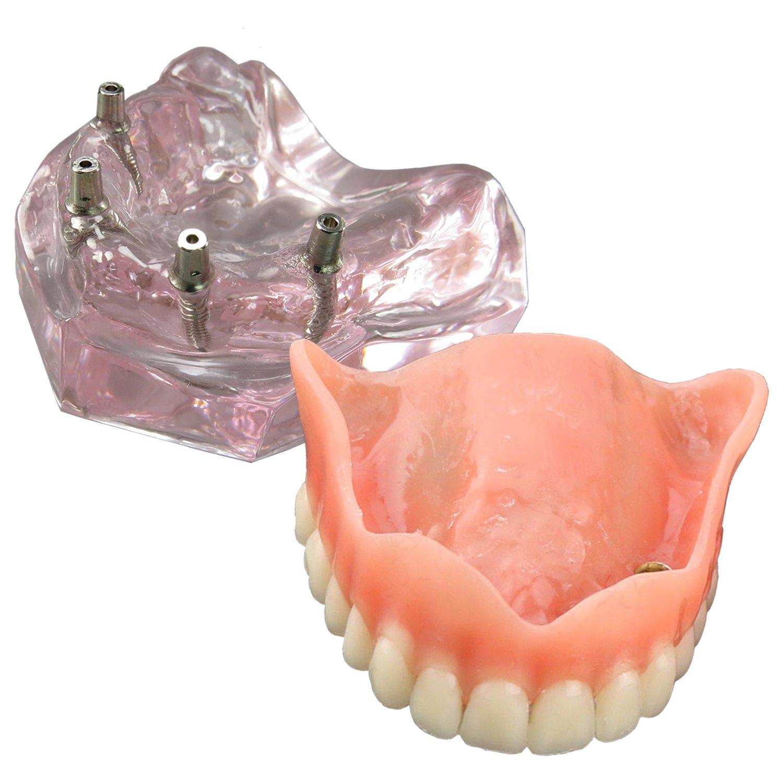Dental Model Overdenture Upper Teeth 4 Implants Demo for Teaching and Studying