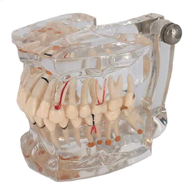 ZHZX Dental Model, Dental Pathology Model, Adult Transparent Oral Model, Full Mouth Implant Model, Teaching Demonstration Dental Model