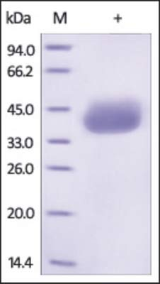 96-273 - - EpCAM Recombinant Protein, C-Twin Strep Tag, ProSci - Each (25µG)