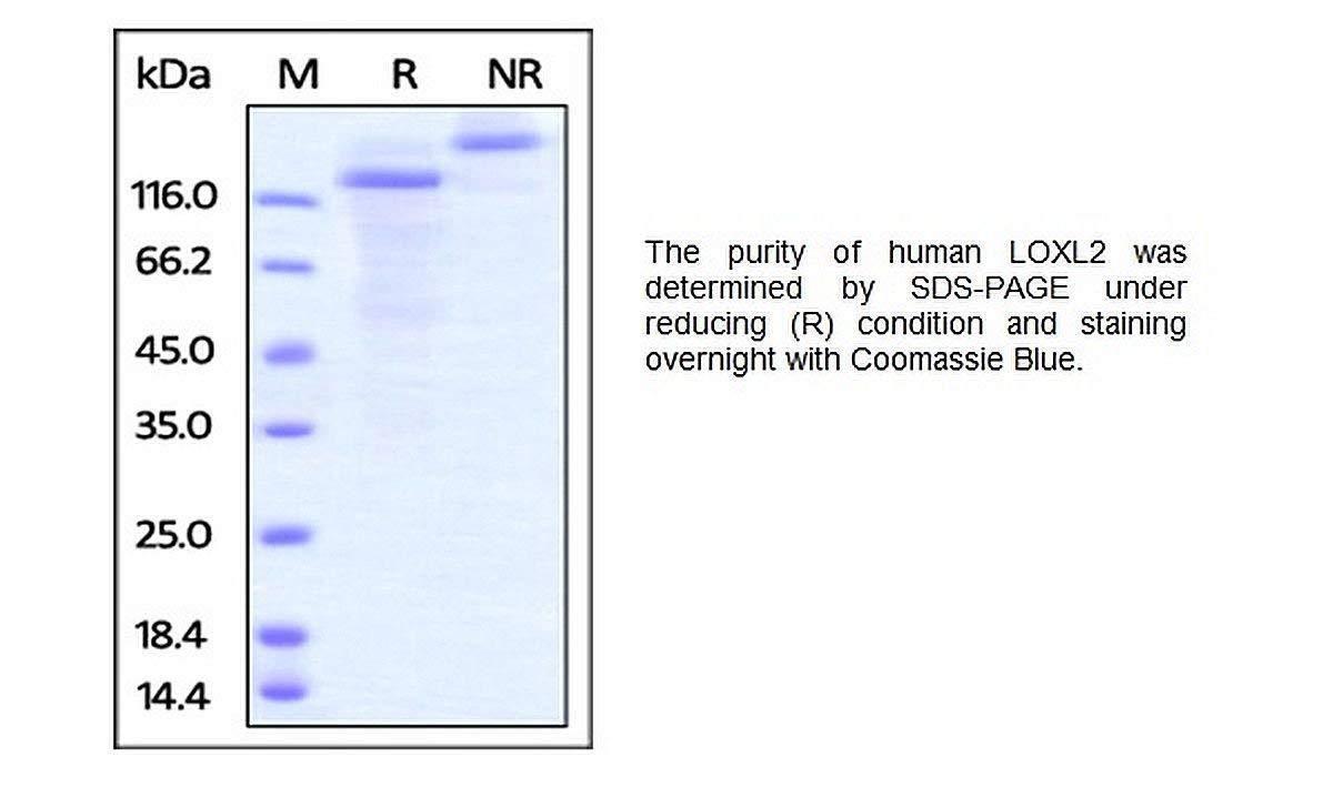 P1084-10 - Size : 10 micrograms - Human CellExp LOXL2, Human recombinant, BioVision Inc - Each (10micrograms)