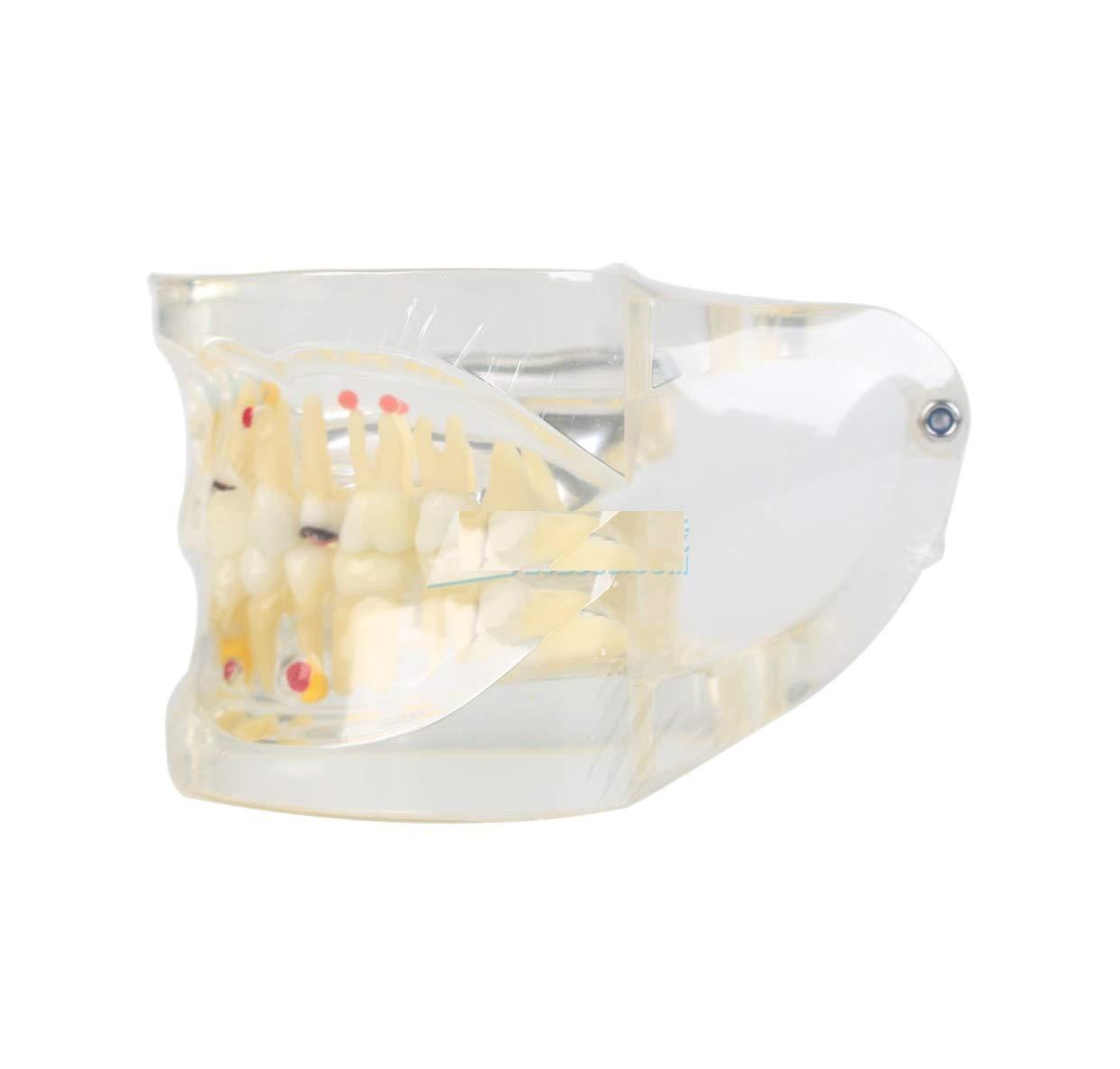 Dental XingXing Pathological repair model A4019