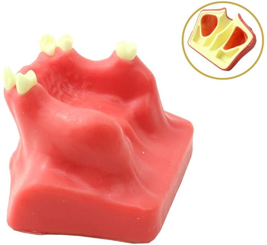 LXX Teeth Model for Education,Dental Adult Teeth Oral Model - Maxillary Sinus Lifting Operation Model Dental Department for Medical Teaching Model Standard Demonstration Tool