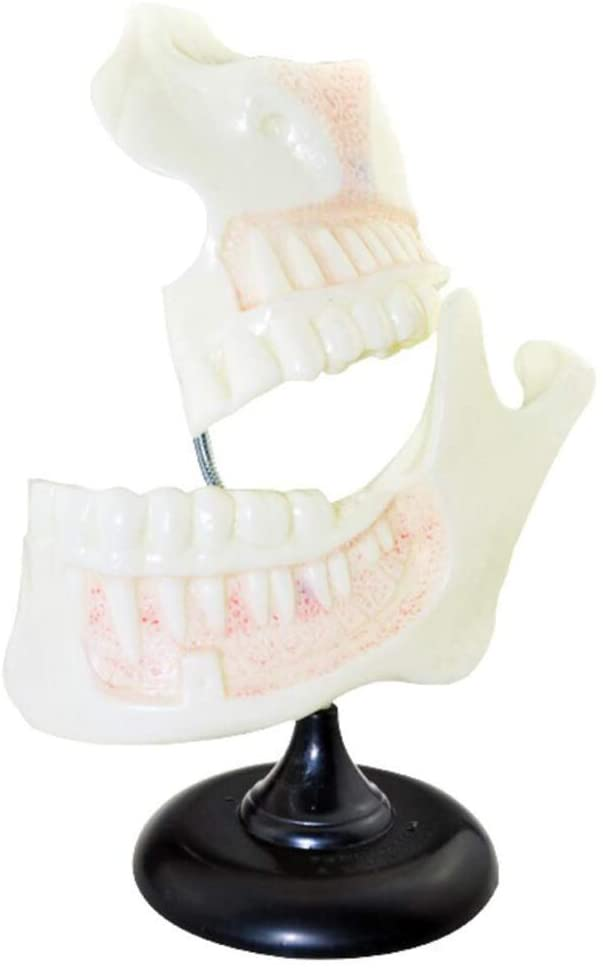 LXX Dental Teeth Model-6X Enlarged Children's Dentition Model Science Dental Teaching Anatomy Model,Gums Standard Demonstration Teeth Model for Teaching Kids -Medical Educational Training Aid