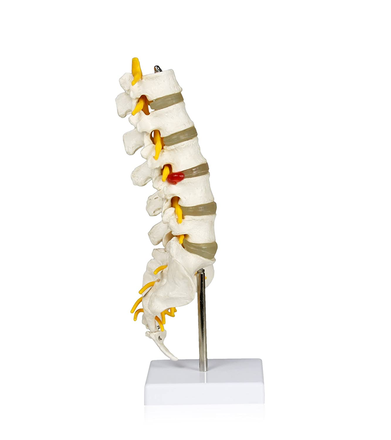 Jackson Global JS00053 Lumbar Spinal Column | Perfect for Display and Patient Education in Medical | Mounted On A Board