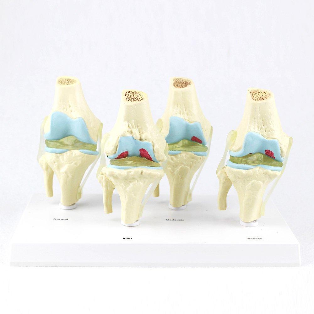 Human Quarter Knee Bone Joint Erosion Anatomical Teaching Model Doctor Patient Communication by Skeleton King