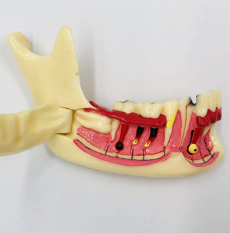 Dental Mandible Mandibular Tooth Disease Study Model Patient Demo Root Canal