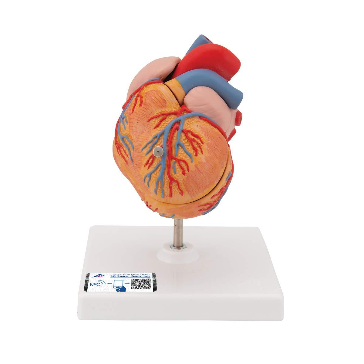 3B Scientific G04 Classic Heart w/ Left Ventric Hypertrophy (LVH) 2-part - 3B Smart Anatomy
