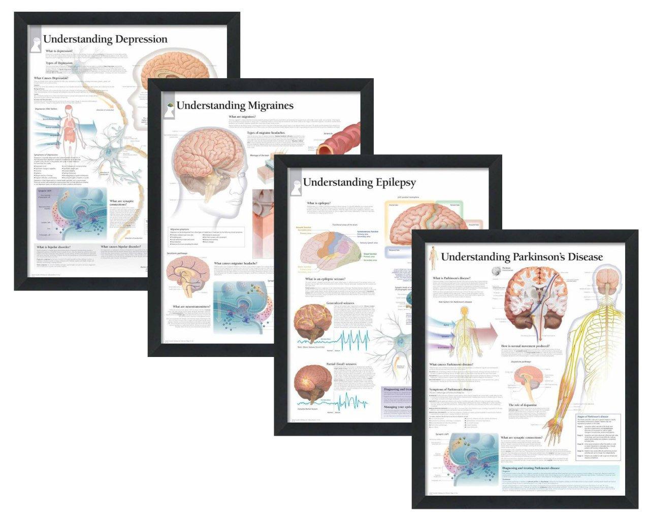"Set of 4 Framed Medical Posters Understanding Depression, Understanding Migraines, Understanding Epilepsy, and Understanding Parkinson's Disease 22""x28"" Wall Diagrams"