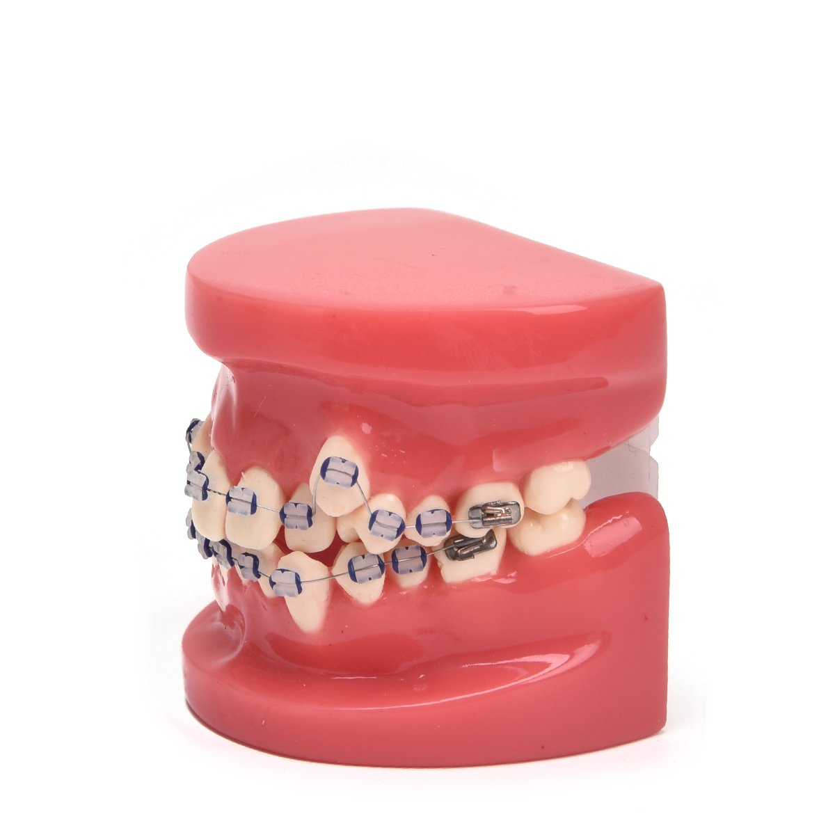 Annhua Demonstration Orthodontic Model Teeth Teach Study Tools with Coloured Ceramic Bracket