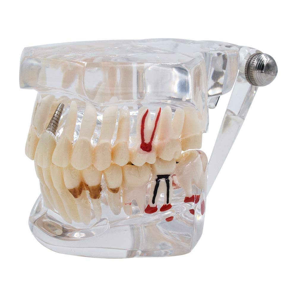 Transparent Disease Teeth Model- Implant Pathological Anatomy Study Removable (Transparent)
