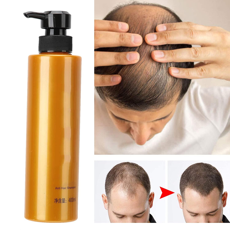 400 ml Ginger Hair Growth Shampoo, Natural Mild Anti Hair Loss Shampoo for Bald Thin Hair Fast Growth Hair Loss Treatment Men and Women, effective help against hair loss